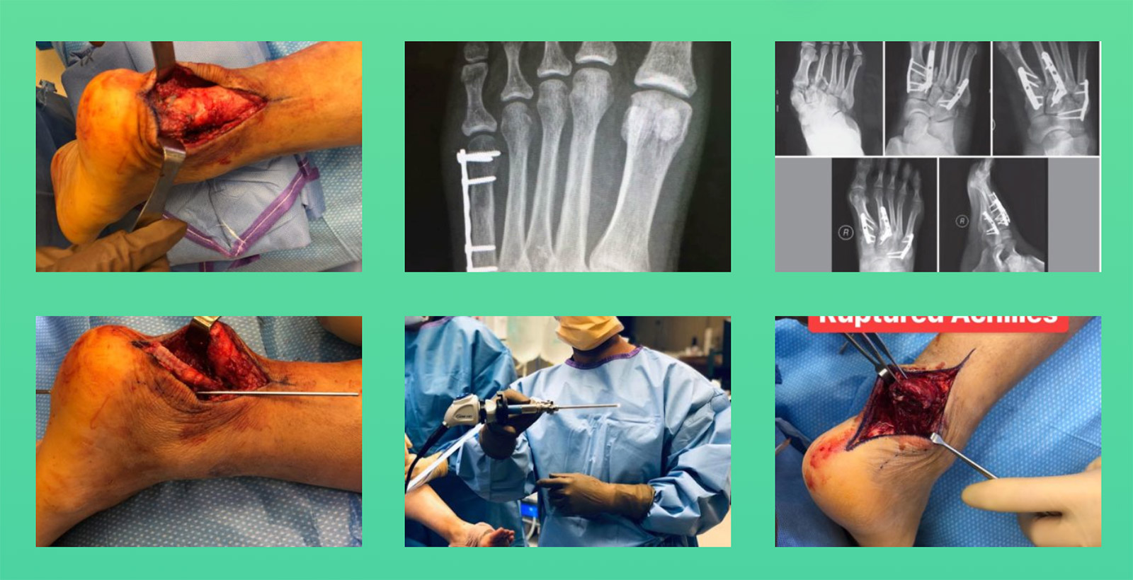 Patient Resources | Photo Gallery | Foot & Ankle Surgeon Sarang Desai