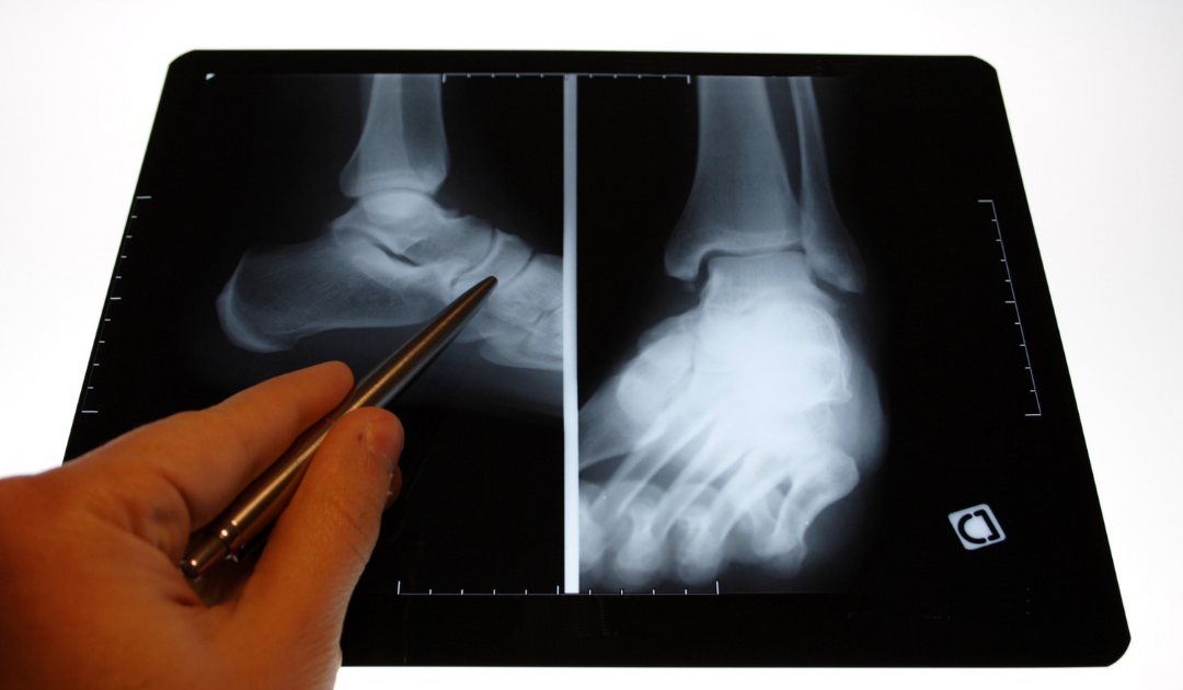What is an orthopedic foot and ankle surgeon?